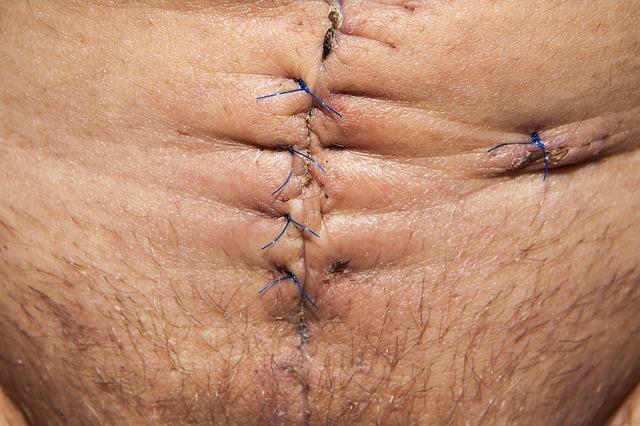 Free op operation abdomen surgery surgical scar scar