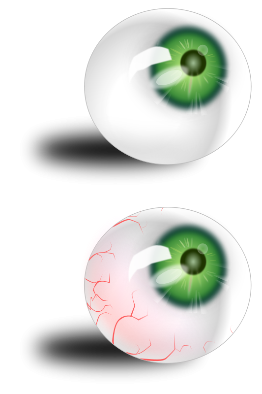 Free Eyeball green & bloodshot