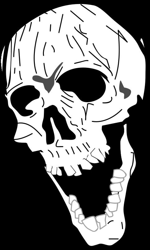Free bone