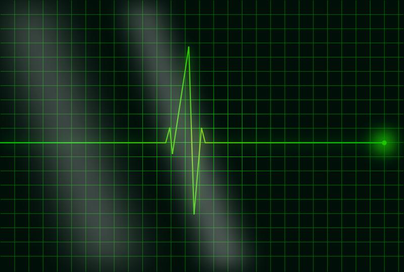 Free electrocardiograms
