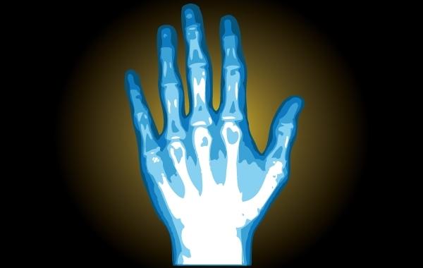 Free X-Ray Hand Illustration