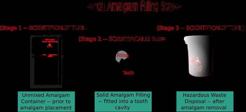Free Dental Amalgam Filling Stages