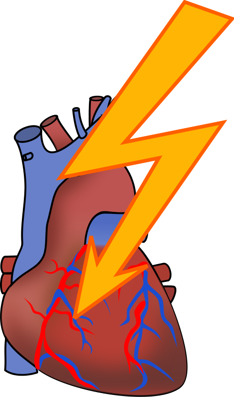 free clipart heart attack moini rh 1001freedownloads com Cartoon Character Having a Heart Attack Heart Attack Diagram
